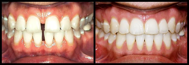 los-angeles-orthodontics-smiles-1