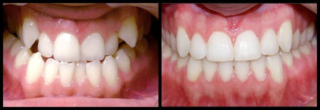 los-angeles-orthodontics-smiles-2