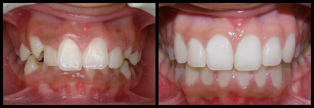 los-angeles-orthodontics-smiles-3