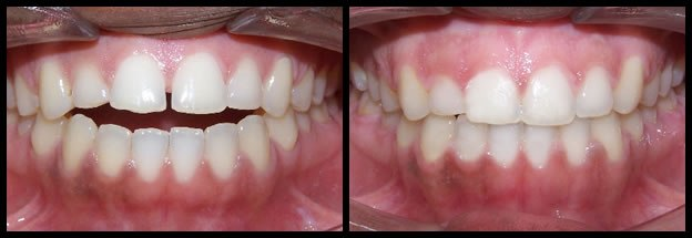 los-angeles-orthodontics-smiles-5
