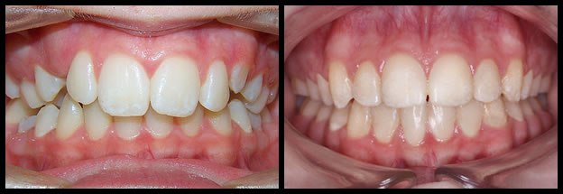 los-angeles-orthodontics-smiles-6