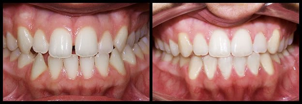 los-angeles-orthodontics-smiles-8