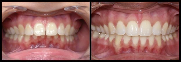 los-angeles-orthodontics-smiles-9