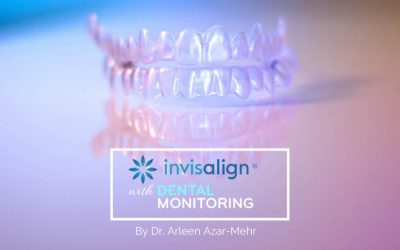INTRODUCING DENTAL MONITORING WITH DR. ARLEEN AZAR-MEHR! Faster, More Efficient Invisalign Treatment with Fewer Appointments